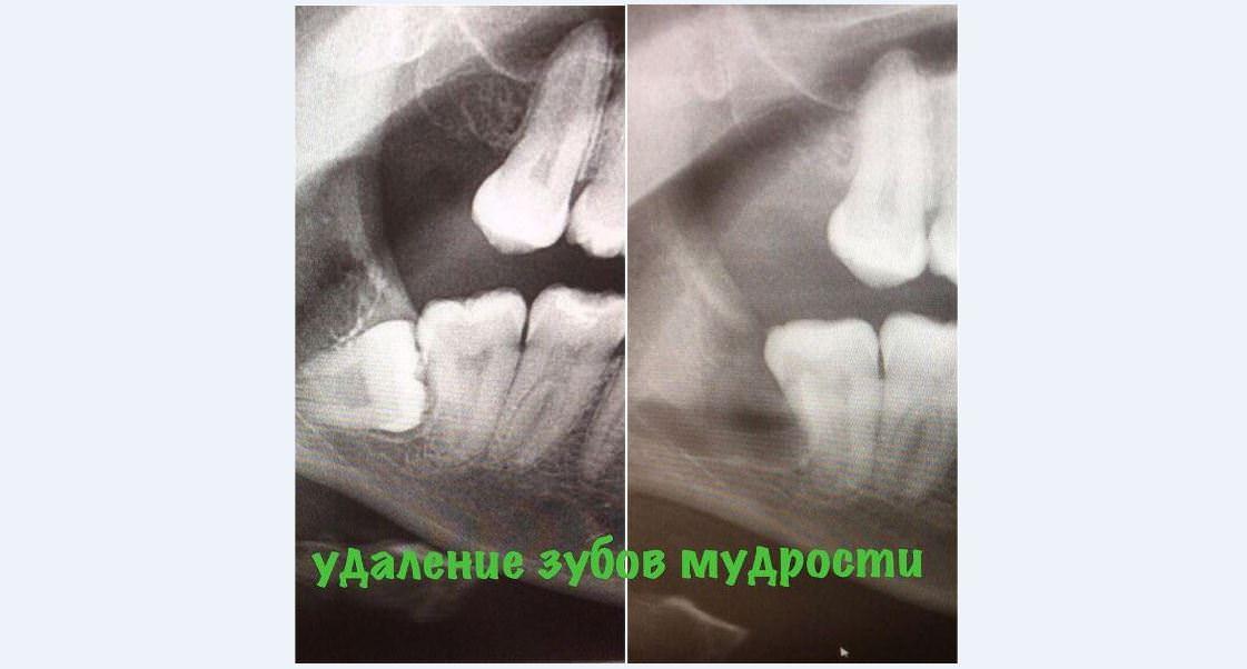 Как удаляют ретинированный зуб мудрости