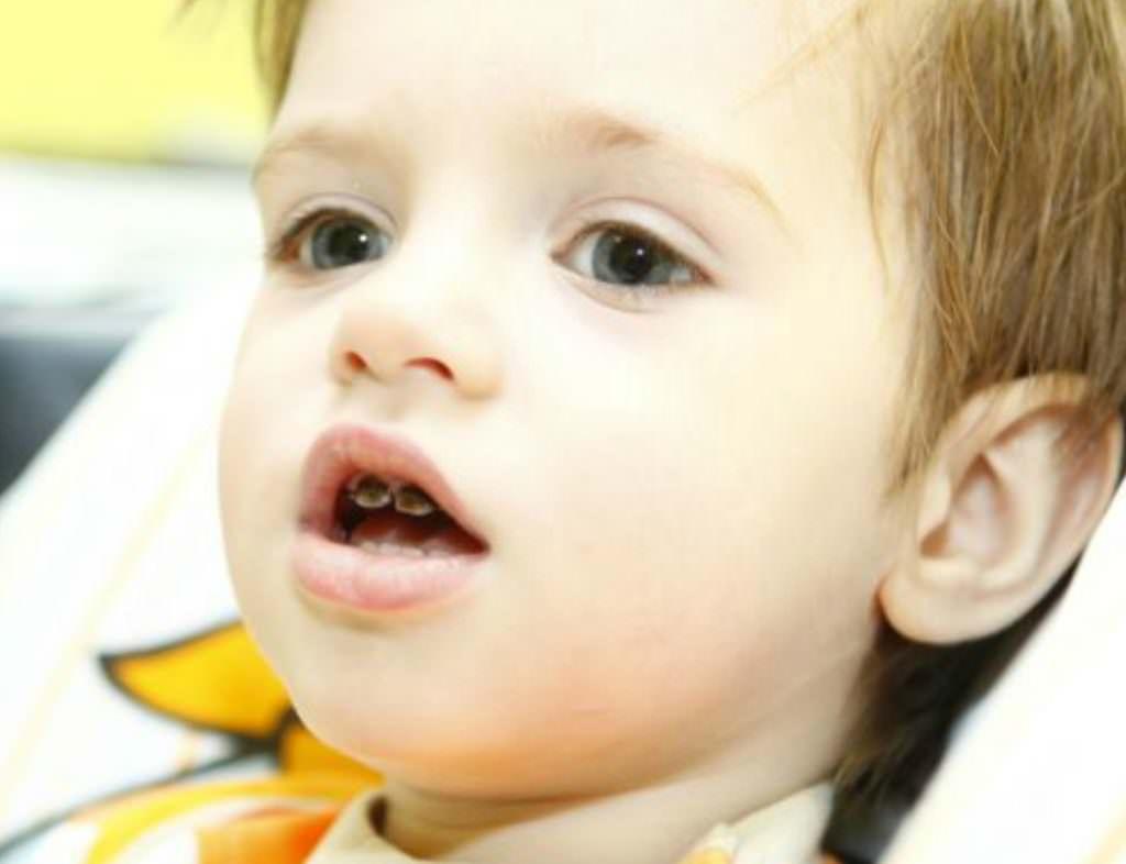 Потемнение зубов от серебрения через несколько часов пропадает, эффект - остается