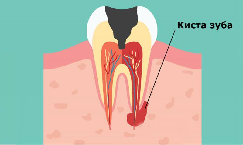 Киста зуба - это воспаление около корня
