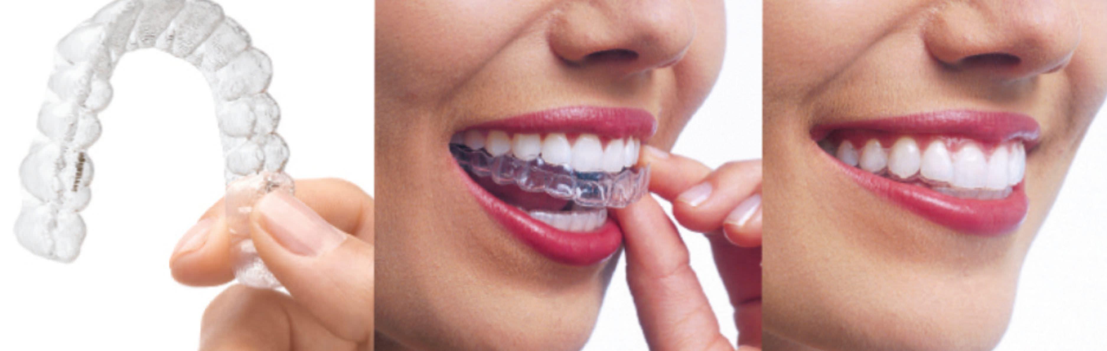 ортодонтия исправление прикуса